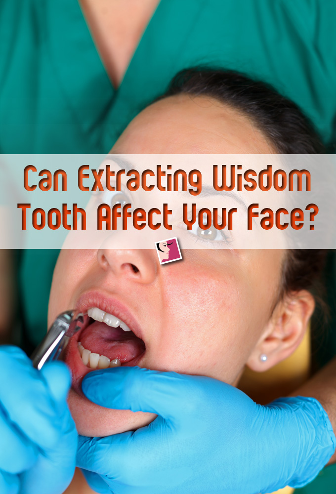 How Can Extracting Wisdom Tooth Affect Your Face