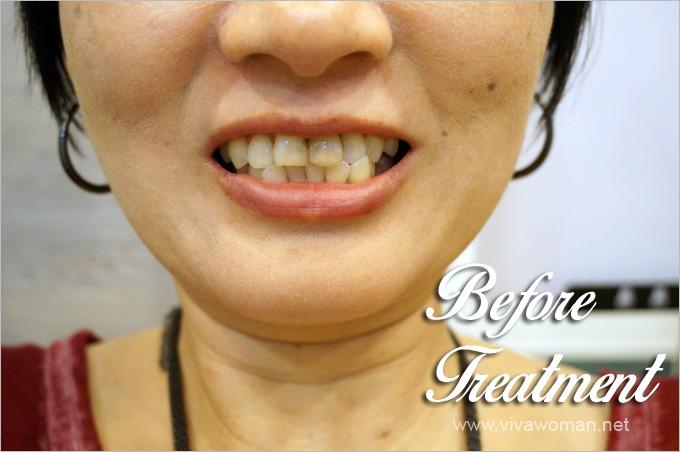 Before-LED-Teeth-Whitening