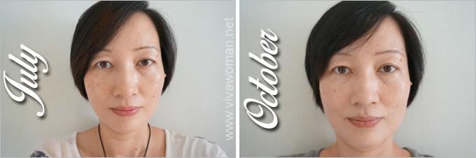 Facial-Fitness-PAO-July-Oct