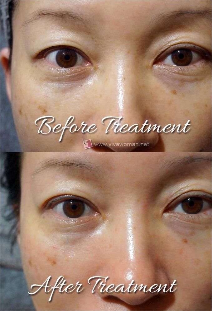 Hadara-Sparkling-Eye-Therapy