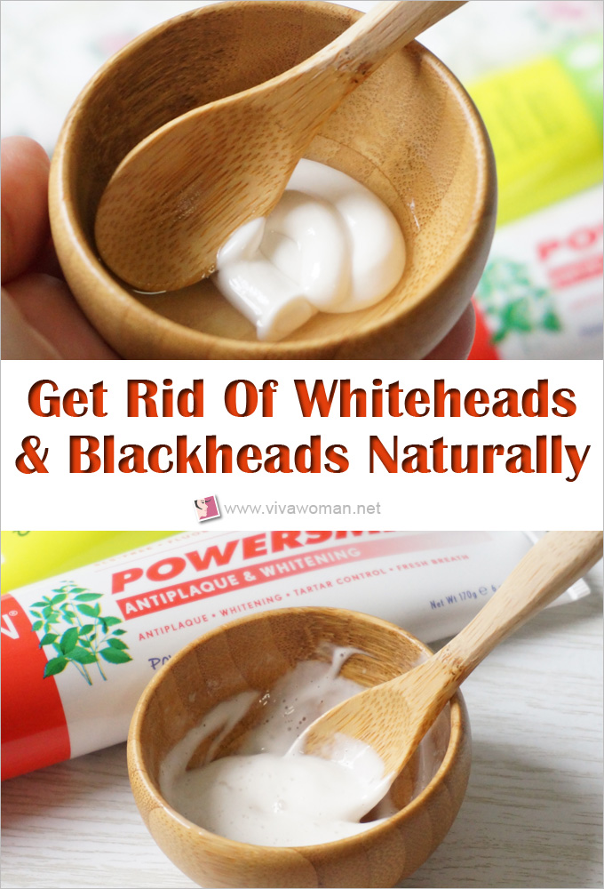 the-diy-method-to-get-rid-of-whiteheads-blackheads-naturally